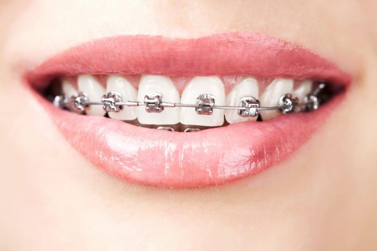 Aparatul ortodontic