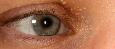 Prin ce difera milia de alte tipuri de pori infundati